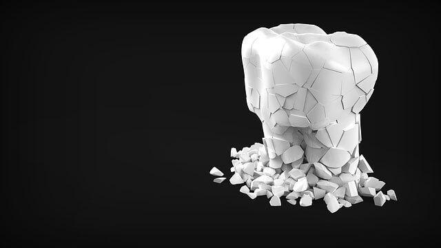 Sintomas de dor nos dentes e possíveis problemas
