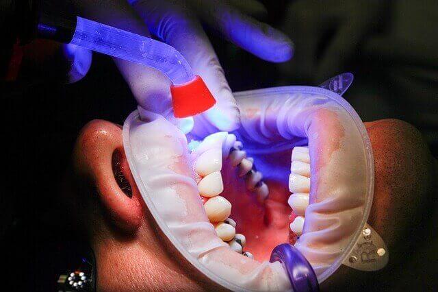 Tratamento de canal para o nervo do dente