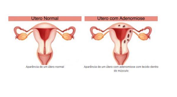 Comparação de um útero sádio e um com a condição.