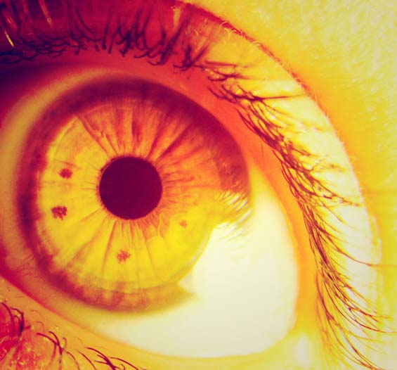 Como ocorrem os Olhos Amarelos (Icter�cia)?