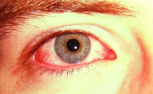 Hemorragia Subconjuntival - Mancha de Sangue no Olho